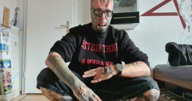Залежний від татуювань витратив понад 220 тисяч гривень на видалення вух